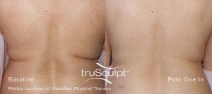 trusculpt bedford ny primary aesthetic